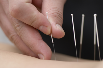 Silver Acupuncture